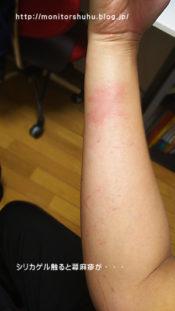 シリカゲルでアレルギー