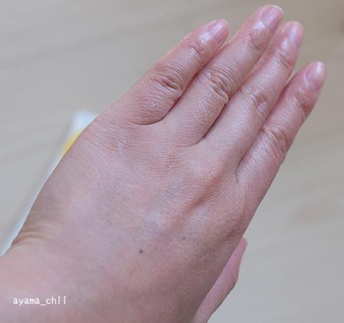 SuRuRuで除毛前の手